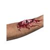 Herida hueso roto